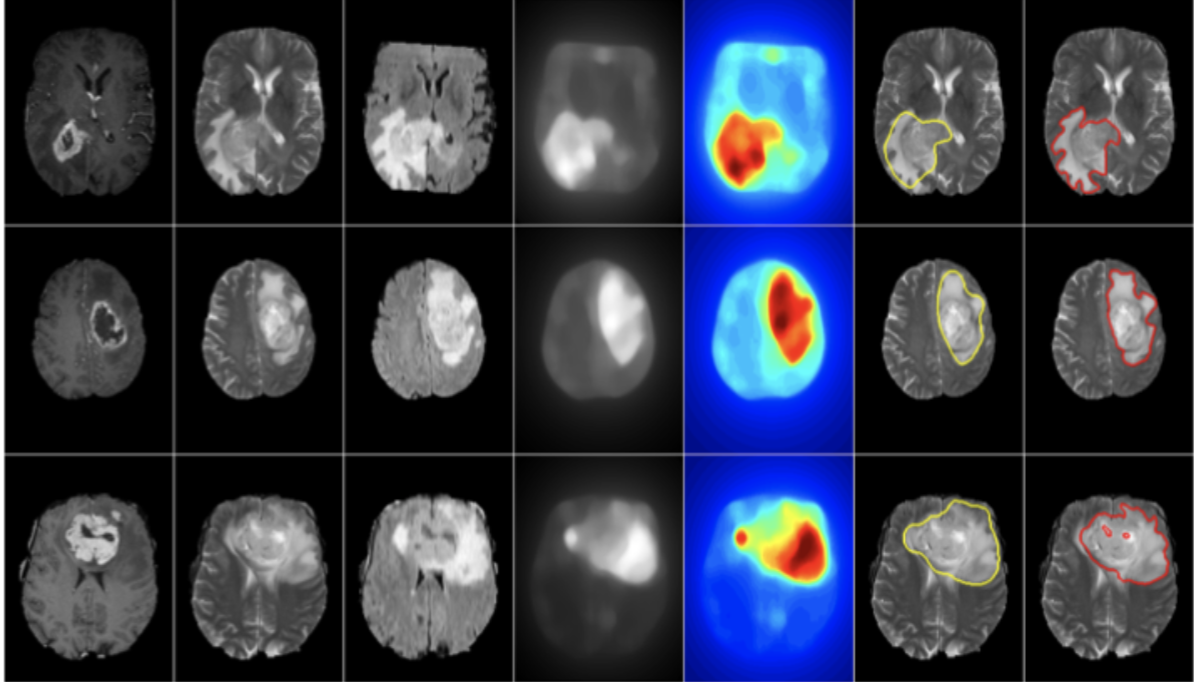 MRI images of a brain, with three images highlighted and color-coded