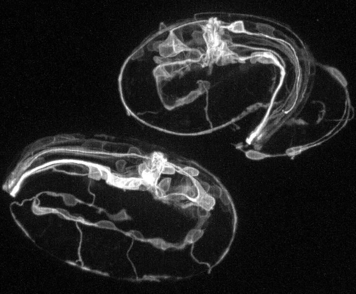 Confocal imaging of neuronal process outgrowth in C. elegans embryos (Pavak Shah)